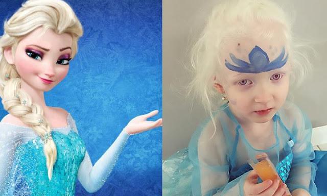 Como a princesa Elsa ajudou uma garotinha a aceitar seu albinismo